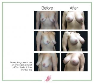 dr-knoetgen breast-augmentation 87
