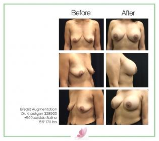 dr-knoetgen breast-augmentation 88