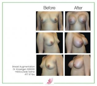 dr-knoetgen breast-augmentation 89