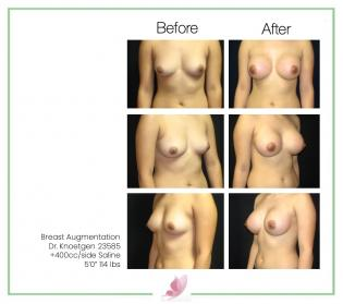 dr-knoetgen breast-augmentation 9