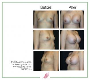 dr-knoetgen breast-augmentation 90
