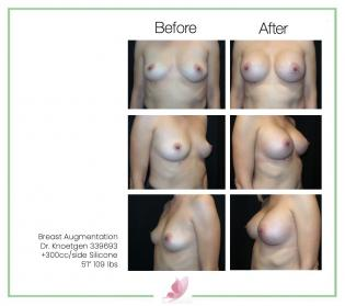 dr-knoetgen breast-augmentation 91