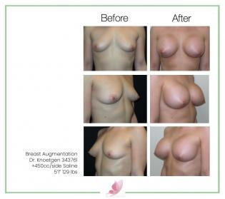 dr-knoetgen breast-augmentation 92