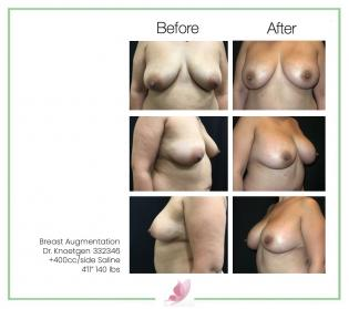 dr-knoetgen breast-augmentation 93