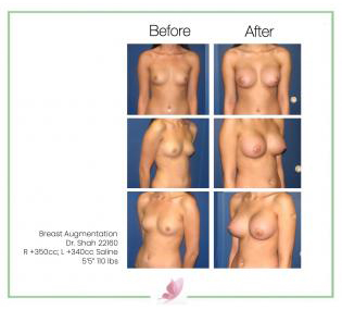 dr-shah breast-augmentation 1