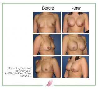 dr-shah breast-augmentation 10