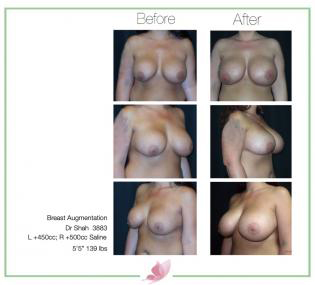 dr-shah breast-augmentation 100