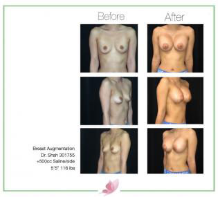 dr-shah breast-augmentation 101