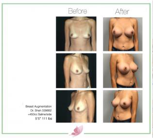 dr-shah breast-augmentation 102