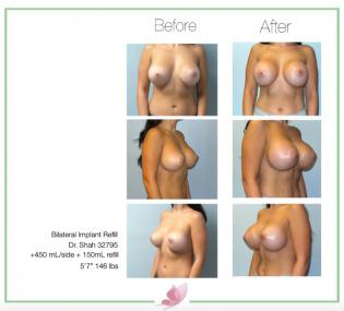 dr-shah breast-augmentation 103