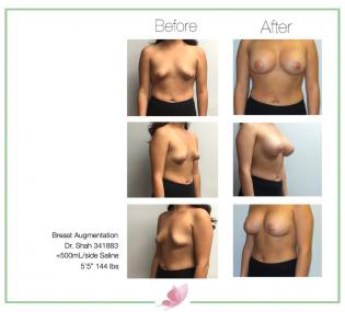 dr-shah breast-augmentation 104