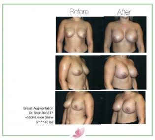 dr-shah breast-augmentation 105