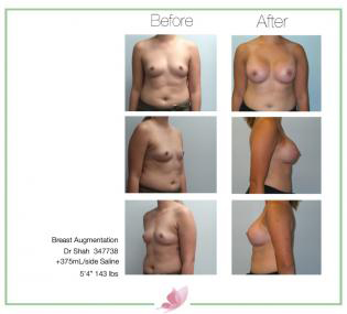 dr-shah breast-augmentation 106