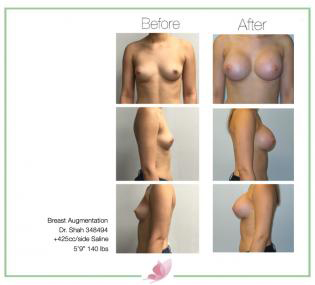 dr-shah breast-augmentation 107