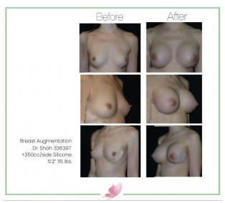 dr-shah breast-augmentation 108