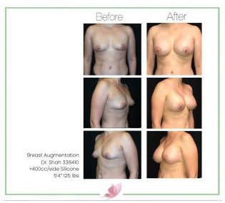 dr-shah breast-augmentation 109