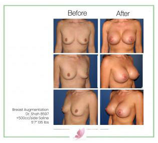 dr-shah breast-augmentation 11