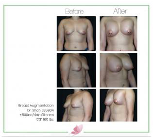 dr-shah breast-augmentation 110
