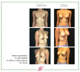 dr-shah breast-augmentation 111