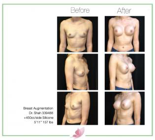dr-shah breast-augmentation 112