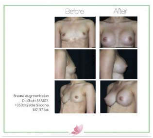 dr-shah breast-augmentation 113