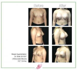 dr-shah breast-augmentation 114