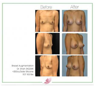 dr-shah breast-augmentation 115