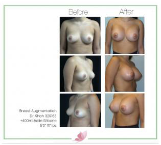 dr-shah breast-augmentation 116