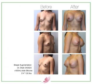 dr-shah breast-augmentation 117