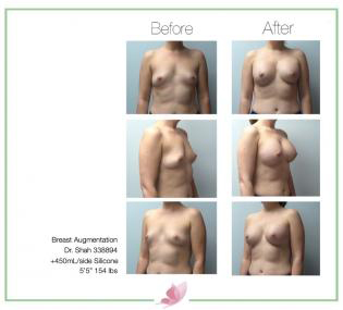 dr-shah breast-augmentation 118