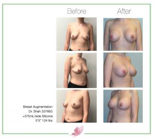 dr-shah breast-augmentation 119