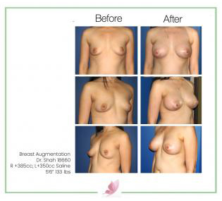 dr-shah breast-augmentation 12