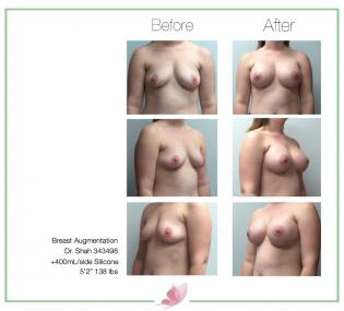 dr-shah breast-augmentation 120