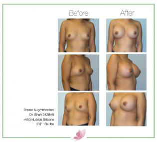 dr-shah breast-augmentation 121