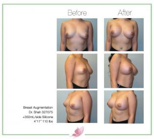 dr-shah breast-augmentation 122