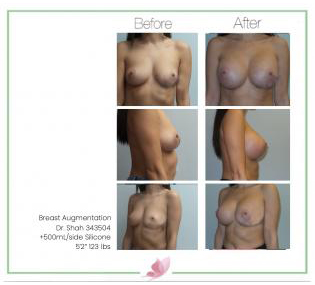dr-shah breast-augmentation 123