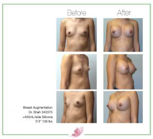 dr-shah breast-augmentation 124