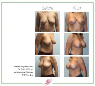dr-shah breast-augmentation 125