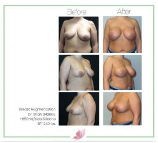 dr-shah breast-augmentation 126