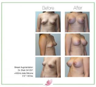dr-shah breast-augmentation 127