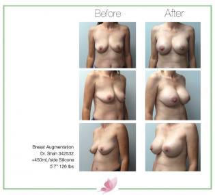 dr-shah breast-augmentation 129