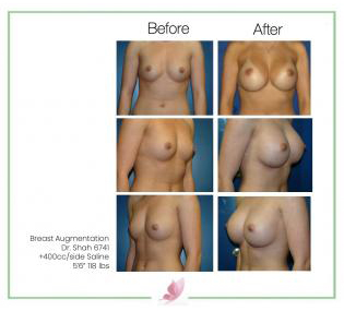 dr-shah breast-augmentation 13