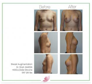 dr-shah breast-augmentation 130