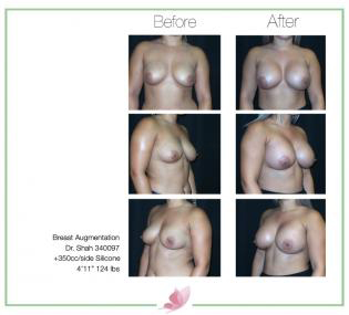 dr-shah breast-augmentation 131