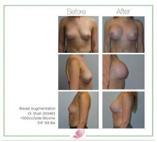 dr-shah breast-augmentation 132