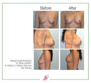 dr-shah breast-augmentation 133