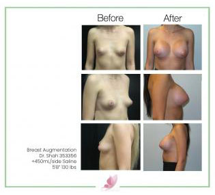 dr-shah breast-augmentation 134