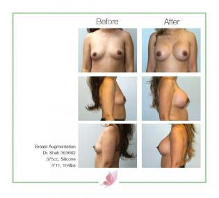 dr-shah breast-augmentation 135