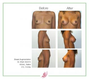 dr-shah breast-augmentation 136