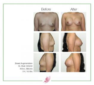 dr-shah breast-augmentation 137